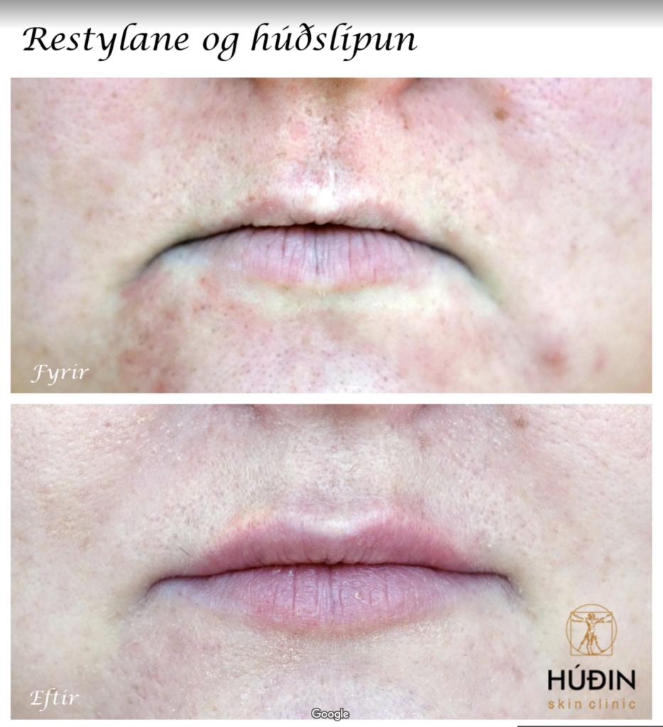 Húðin Skin Clinic